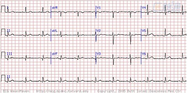 心肌梗死:不可错过的心电图线索