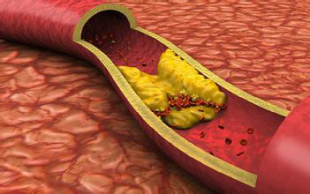 动脉硬化的一般寿命_血管软,寿命长,血管硬,寿命短!这有一份软化血管的食物清单!