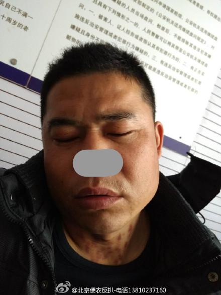 北京反扒民警公布小偷照片 将马赛克打在鼻子上