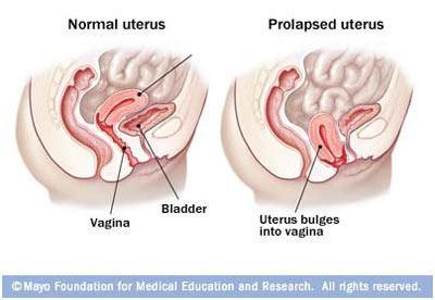 产后子宫脱垂多久恢复