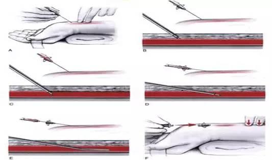 动脉穿刺置管术
