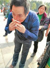 冯老师的鼻梁受伤