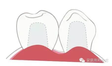 种植牙是口腔界公认的理想修复手段,那么种植牙的结构到底是怎么样的
