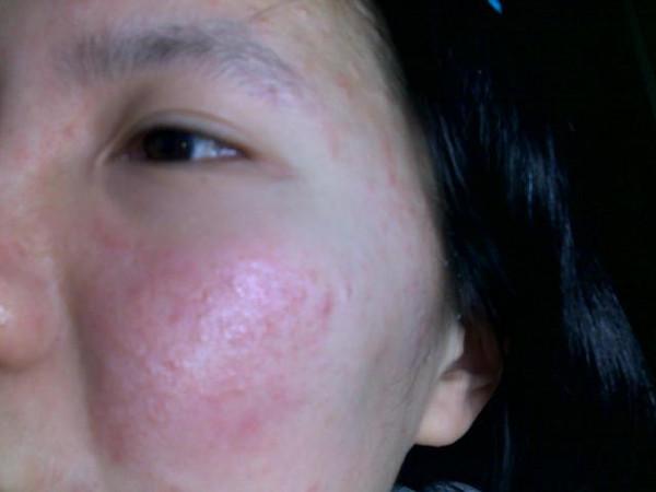 脸上过敏症状有哪些