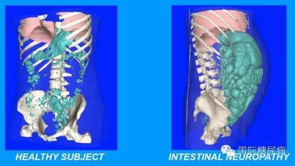 道CT检查图(左侧为健康个体,右侧为肠道神经病变患者)-糖尿病图片