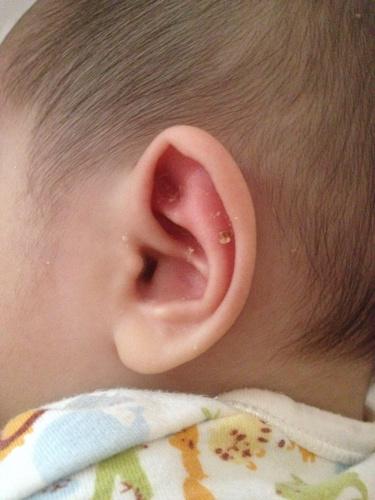 症状 中耳炎