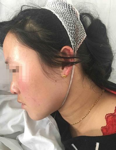 图为李彤霞正月初三被打后在住院