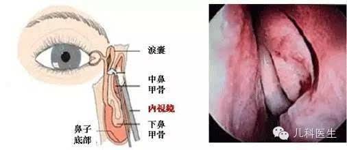 鼻腔结构图解剖图正面