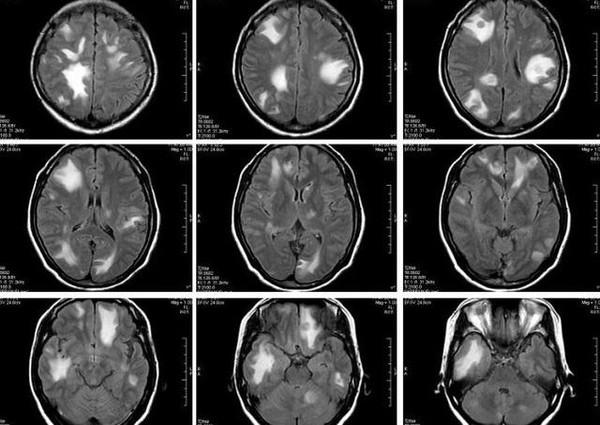 多数患者有中枢神经系统功能紊乱的症状,大约50%%u7684患者有头痛症状