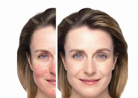 脸肿如面包竟是甲醛过敏 图
