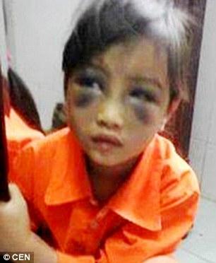 女孩眼睛下方瘀伤严重-越南 6岁女孩因拼写错误 被老师打成严重瘀伤