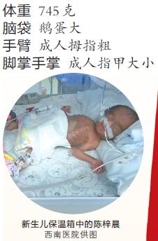 昨日,梁平县人民医院,陈起植夫妻俩展示小梓晨的照片。记者 张路桥 摄