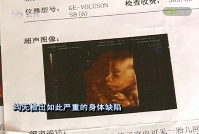 更令家眷无奈承受的是,此前在宝安区公民病院停止三次的产检均无检出云云严峻的身材缺点。这份中孕期的3D彩色超诊断陈述单上,明晰写明,胎儿两侧股骨、肱骨、尺桡骨、胫腓骨可见。