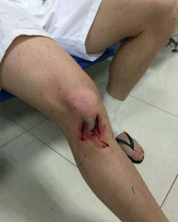 吉安努赛后展示伤腿