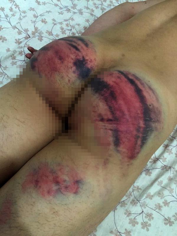 因拒交暴力执法视频 大学生屁股被警察打开花(图)