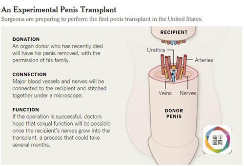 """此前,美国约翰斯・霍普金斯医学院也方案施行阴茎移植手术,但只为疆场上受伤的战士供给,不思考变性人,意图是医治""""和平留住的暗藏伤痕""""。"""