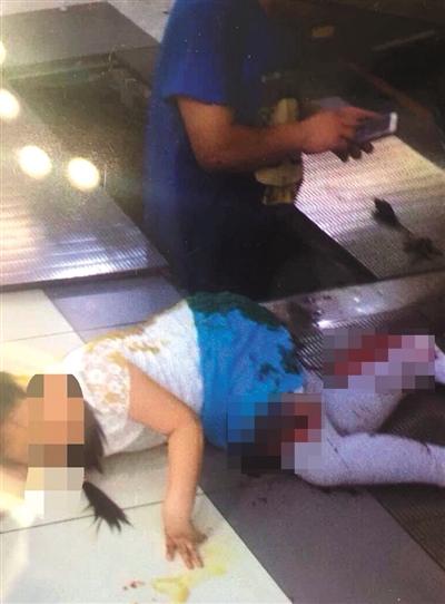昨日,复兴门百盛购物中心4层,一名8岁女童坠入电梯踏板内,左大腿处划伤25厘米。网络截图