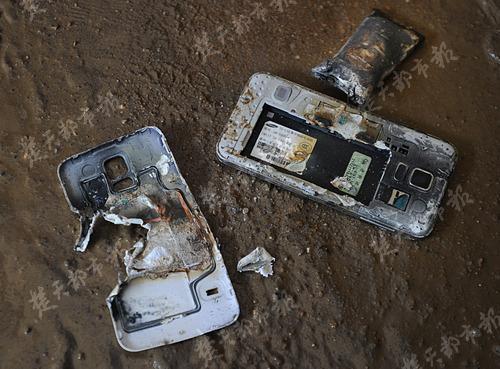 张老师腿部被手机灼伤