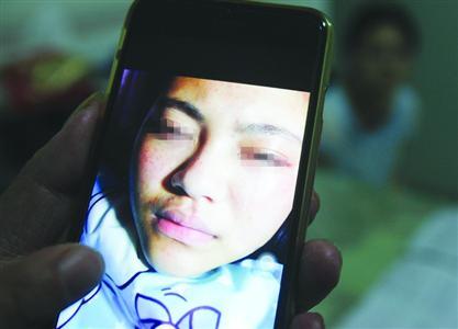 鲍嘉的爸爸妈妈供给的相片显现,鲍嘉的腿部、脸部呈现淤青红肿。/晨报记者 张佳琪