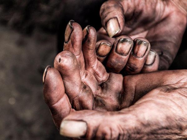 一位工友在展示他的双手,在一次装卸货物的时候,手指被割掉一节。