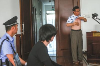 朱老师掀起衣物,示意从前做过心脏手术。京华时报记者赵思衡摄