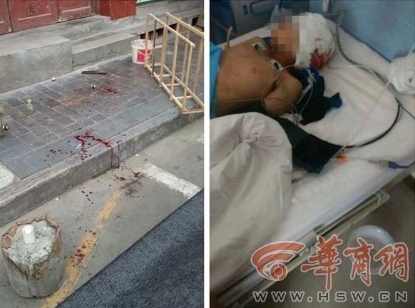 一位8岁男童被街坊57岁主妇砍至轻伤。