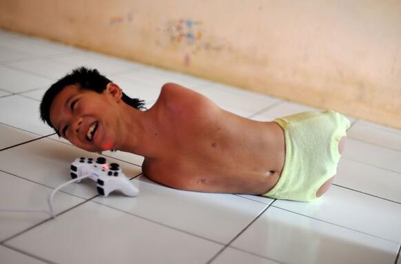 印尼男孩童尤生成无四肢照旧悲观生计,还用下巴玩PS。(图像来历收集)