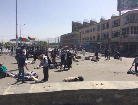 【环球网报道 记者 赵衍龙】据外媒7月23日消息报道,当地时间23日下午,阿富汗首都喀布尔一游行队伍遭自杀式炸弹袭击,爆炸目前造成至少61人死亡,207人受伤。