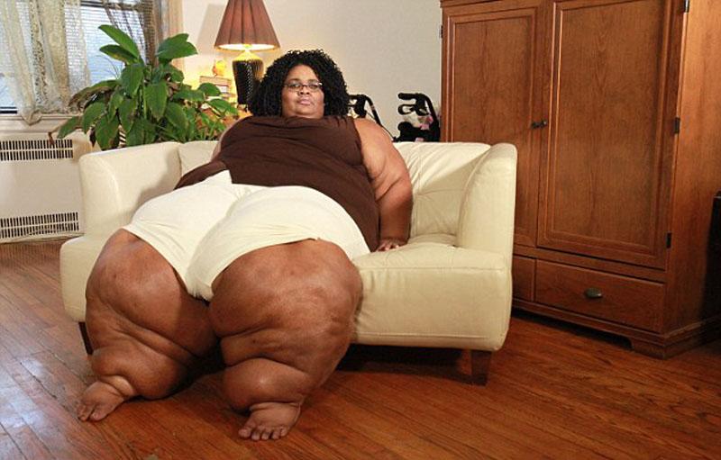 美国女子佩奇患有罕见怪病,导致她的双腿并在一起宽达1.2米。(网页截图)
