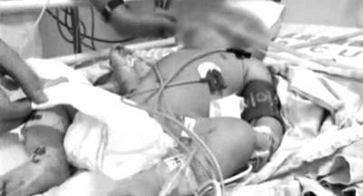乐乐当时在医院抢救的情景。视频截图