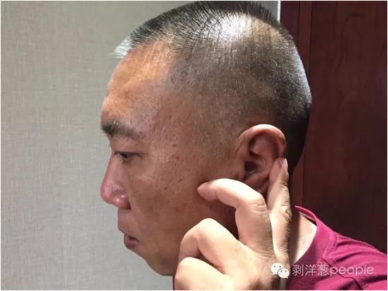 53岁的王金虎,按着本人耳朵上的创痕。那是送走他时爸爸妈妈留住的。