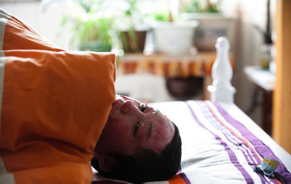 2012年2月27日,合肥市公安局再次公布案件相关情况:被害人或需二次手术,警方暂无法作出伤情鉴定。躺在床上的周岩刚涂完药膏。 视觉中国 资料图