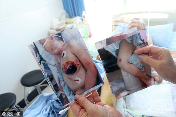 """""""母亲身上的伤是在我弟弟范某奎家生活时出现的,母亲8月11日被我弟弟送到了广饶县人民医院治疗,14日我们把母亲转到了东营继续接受治疗。""""在医院陪护老人的女儿范女士告诉记者,她母亲今年76岁,有两儿两女四个孩子,从2015年12月份开始,老人由儿女轮流照顾,由于涉及房产纠纷,弟弟范某奎自今年3月1日接走老人后就拒绝哥哥姐姐轮流照顾,母亲一直住在弟弟弟媳家。""""7月31日,我妹妹到范某奎家中看过母亲,那时母亲身上还没有伤痕。8月11日,接到妹妹电话后在医院见到母亲躺在病床上处于昏迷状态,身上存在多处伤痕、淤青、肿胀,身体多处烫伤,口腔烫伤起泡,左侧乳房被烙铁烫伤,多根肋骨断裂,腰部存在褥疮,14号转院到了东营后,检查结果发现母亲还存在严重营养不良等情况,分析认为是长期没有进食所致。""""范女士告诉记者,母亲经过治疗病情有所好转,但病情依然不容乐观。"""