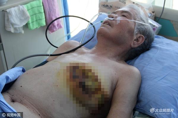 慎入!东营一老母亲遭儿子儿媳虐待 乳房被烫平