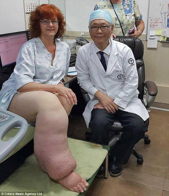 环球网综合报道据英国《每日邮报》9月1日报道,美国一名女子患淋巴水肿数十年而致双腿严重不协调,一只壮硕如象腿,另一只则纤细如麻杆。这使得她无法正常行走,经两年治疗后,她现在终于得以正常生活。