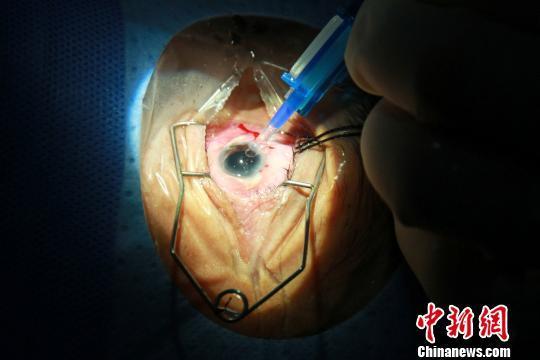 手术切口只有3毫米左右,不用缝针。采用超声波将晶状体粉碎成乳糜状,再连同皮质一起吸出。 关向东 摄