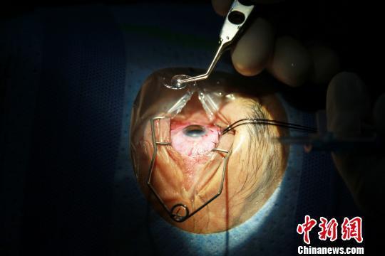 图文第一例手术患者走出手术室,喜悦之情溢于言表。 宋效明 摄