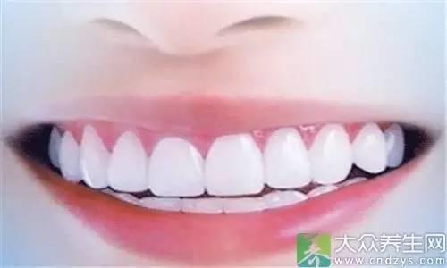 淡黄色牙齿才最健康