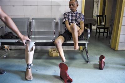 8月29日,浏阳市中医院,彭阳武接受腿部检查,以便确认安装合适的假肢,装一个假肢的费用高达数万元。