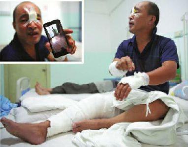 一名西安男子撞上玻璃门受伤后治疗花了3000元。申请医保报销时,他被医院要求到参保单位证明伤是自己造成的。 华商网 图