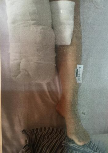 事故形成17岁少女右脚被截肢