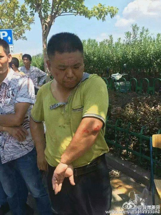 一名绿衣男子衣服被撕烂,胳膊关节处受伤. 来源:@沙坡尾厦门图片