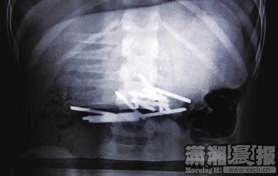 ?X光片显示,小文的体内有十多根钉子。?小文吞下的铁钉和牙签对比。