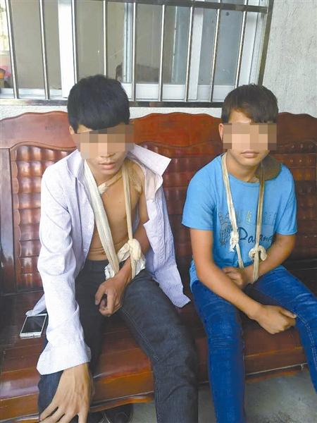 李光(化名)和黎森(化名)左手都绑着绷带,因为他们左边锁骨被碰瓷团伙残忍地敲断了。