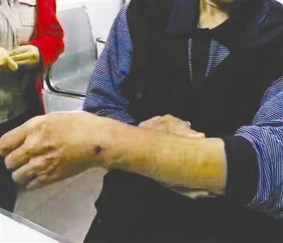 一名市民的手背被咬伤