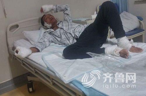 今朝伤者在滨州市公民病院17楼烧伤整形科承受医治