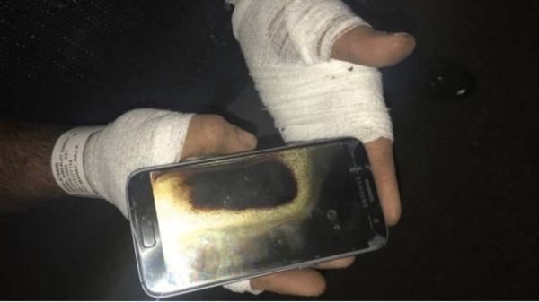 Amarjit Mann的手和手腕均被烧伤