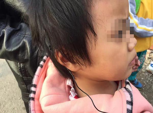 杨才刚这两天一直在公交车站附近寻找。他还到当地的公交公司,希望借助公交车上的监控录像找到丢失的耳蜗。同时,康复中心的医生也帮忙写了寻物启事,发到朋友圈,很多爱心人士也都纷纷转发。就在今天早上,已经有好心人在路边找到了这对耳蜗,并联系了杨才刚,在大家的帮助下,小雅欣也再次找回了与外界沟通的希望。