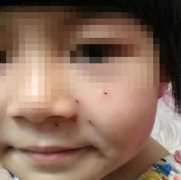 """6岁女童小脸被""""老师""""扎6个洞 只因10+9没算好"""