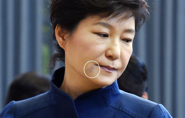 2014年5月13日,朴槿惠右嘴角出现淤血痕迹,此前三天是朴槿惠休息的日子